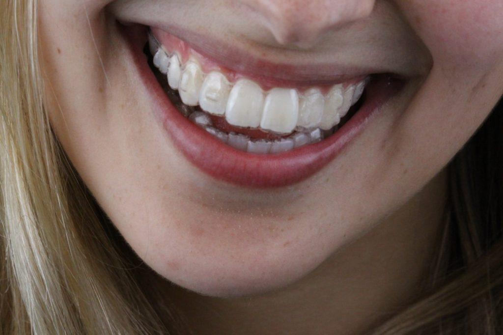 Sorrindo com Invisalign AR odontologia